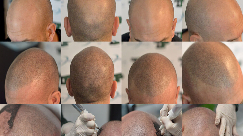 La técnica de Tricopigmentacion llevada a cabo en Medical Hair.