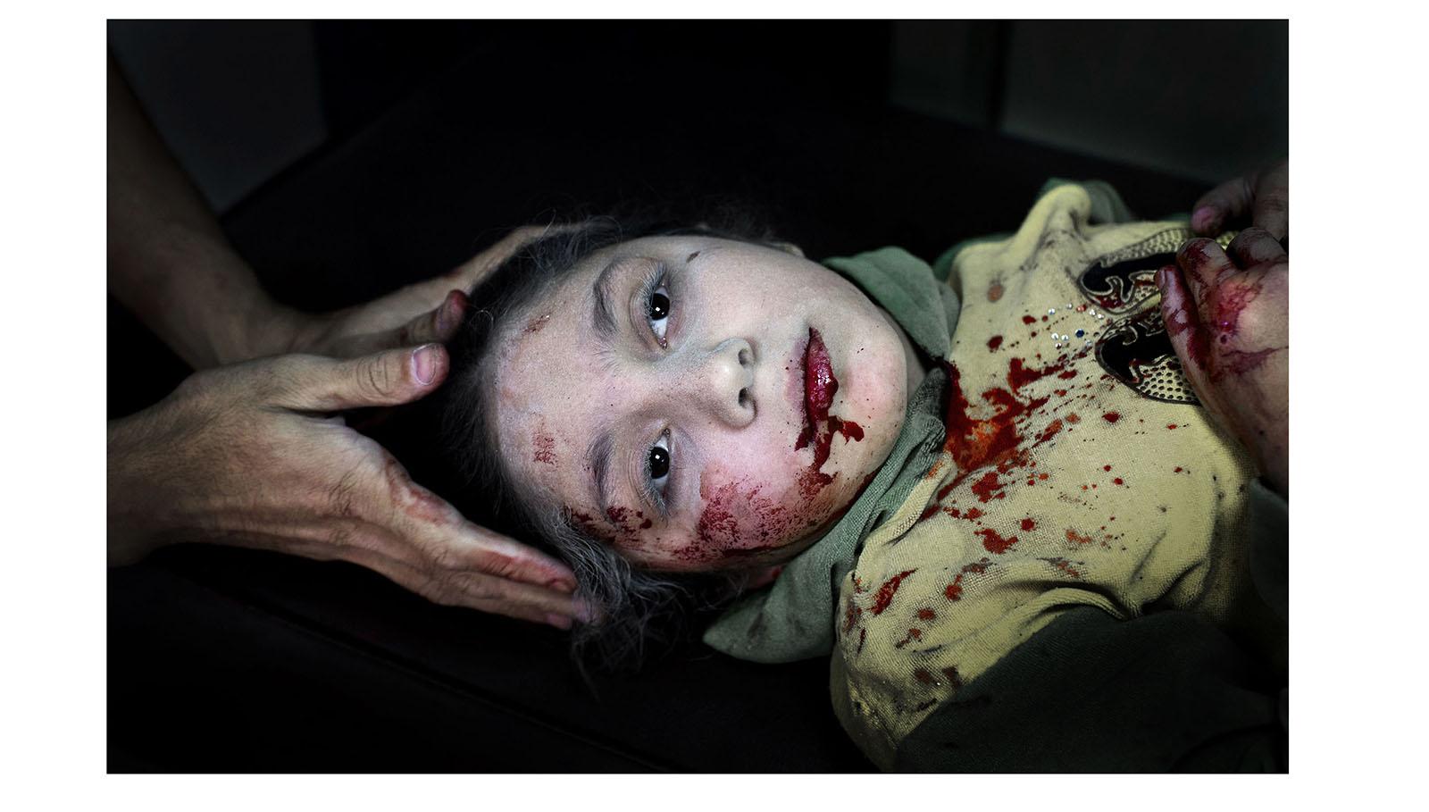 Dania Kilsi, de 11 años, es tratada por heridas de metralla en el hospital de Dar-al Shifa. Ella y sus dos hermanos menores estaban jugando fuera de su casa cuando resultaron alcanzados por una bomba. Son algunas de las miles de víctimas del conflicto en Siria, que comenzó en 2011 y sigue activo en la actualidad.