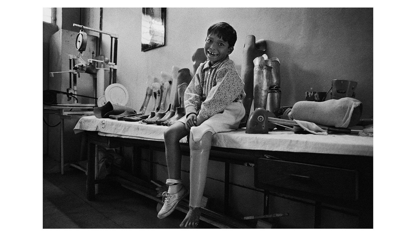 El pie de Jaipur es una prótesis desarrollada en los años 40 en esta región de la India por el Dr. Sethi. Cuando se tomó esta fotografía, el mecanismo costaba tan sólo 4 dólares y se consideraba el más eficaz para quienes viven en países en vías de desarrollo.