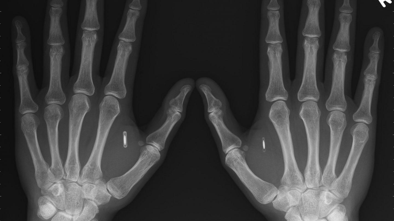 Una radiografía de un paciente con chips implantados en las manos.