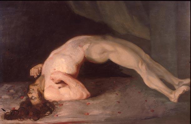 Pintura de 1809 que muestra a un paciente de tétanos