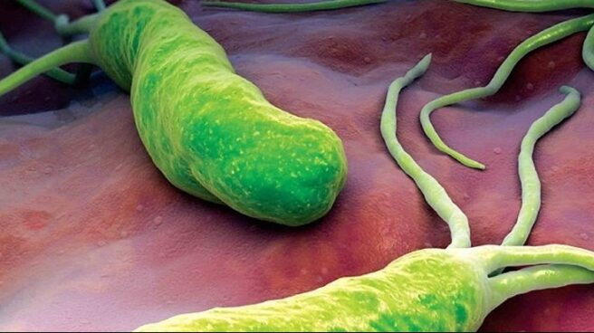 Bacteria estomacal h.pylori