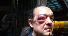 El líder de la corriente Imagina Podemos en Castilla-La Mancha, Fernando Barredo, tras ser agredido.