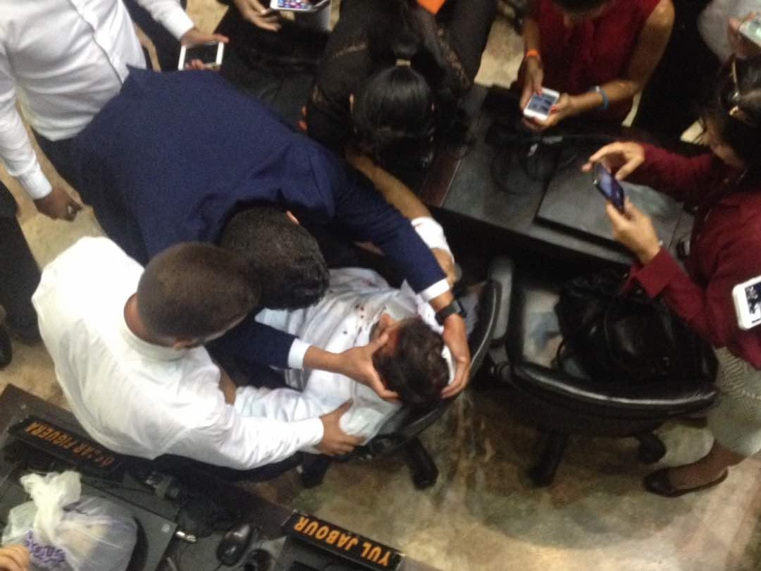 Uno de los diputados agredidos en el asalto al Parlamento de Venezuela.
