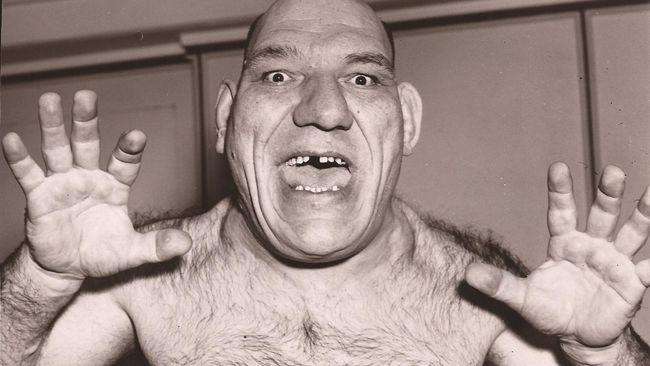 El famoso luchador Maurice Tillet padecía acromegalia.