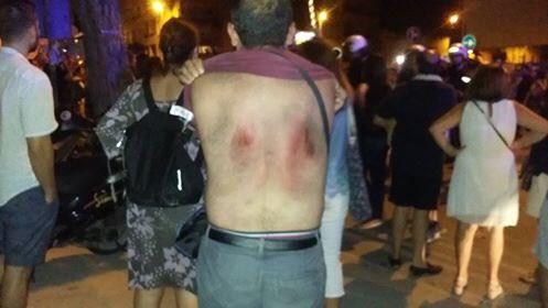 Un manifestante herido en Murcia, junto al paso a nivel