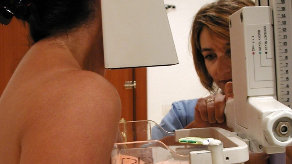 Un 80% de los casos de cáncer de mama se curan en la actualidad.