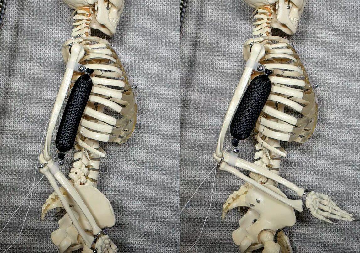 Músculo artificial.