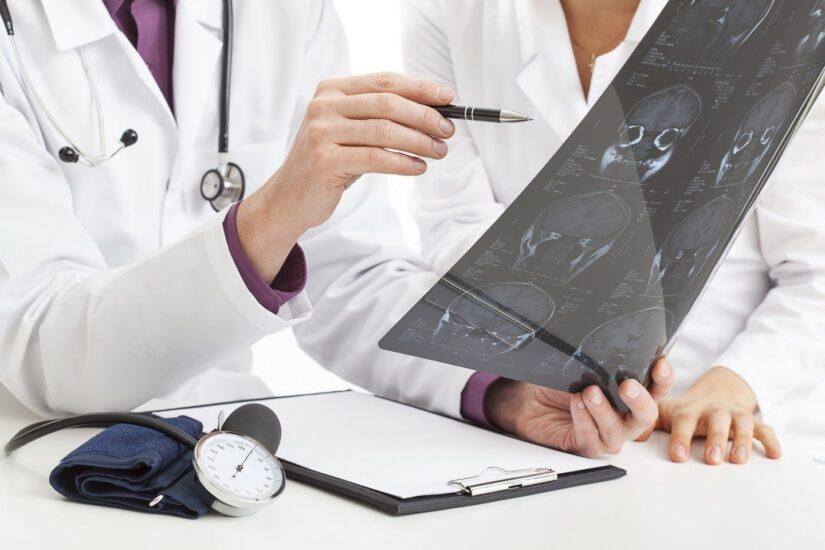 Un médico muestra una prueba craneal.