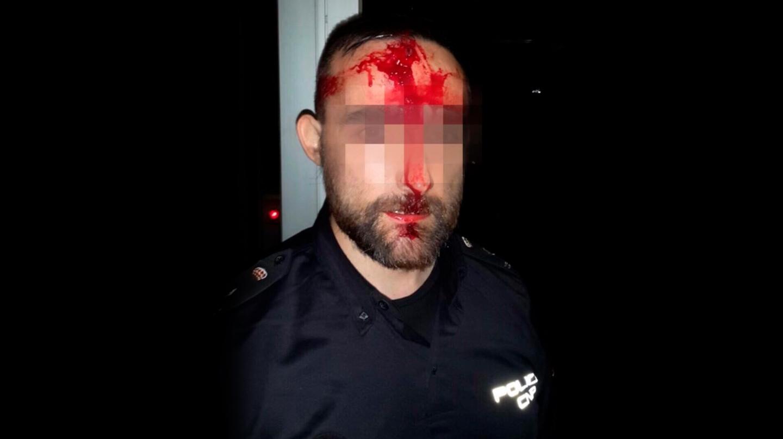 Policía herido el 1-O