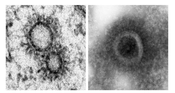 Investigadores del CSIC y el Instituto Pasteur han descubierto que el virus construye sus propios orgánulos para transportar la infección, al contrario de lo que se creía.