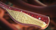 El colesterol 'malo', principal factor de riesgo para que alguien sano sufra un infarto o ictus