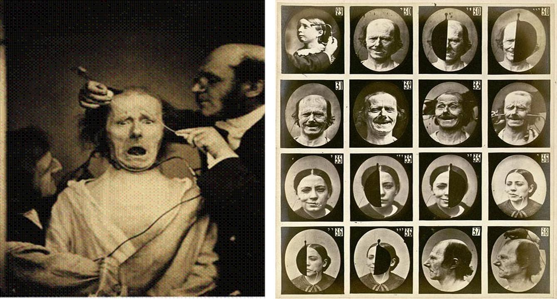 Los pacientes frankenstinianos de Duchenne