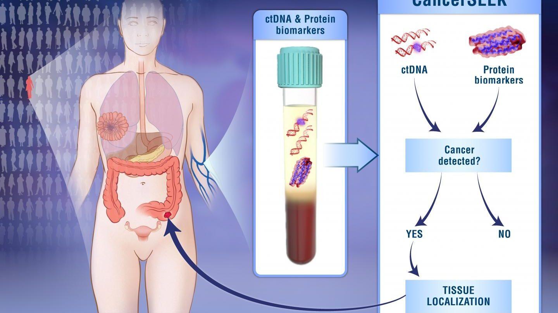 CancerSeek es un análisis de sangre que detecta hasta ocho tipo de cáncer.