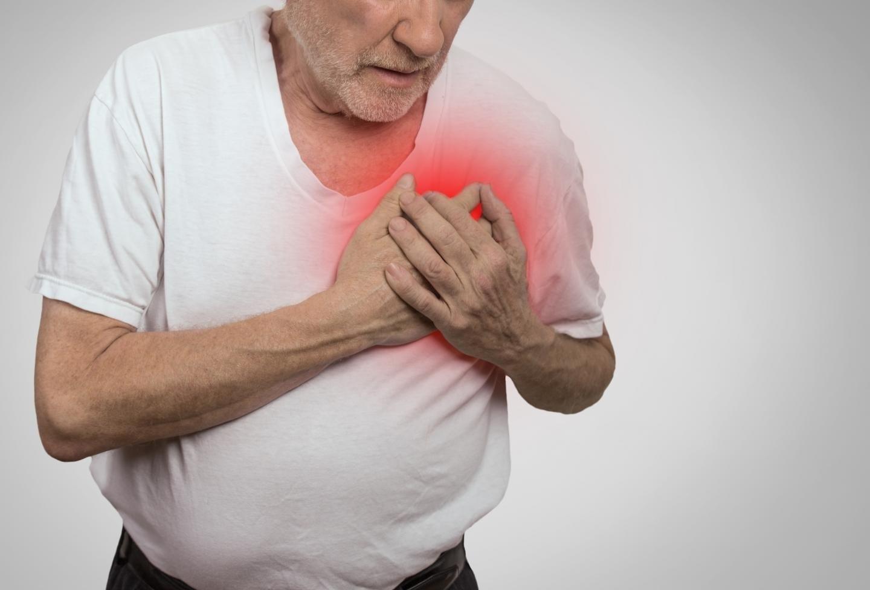 El infarto nos da menos miedo que el cáncer o el ictus, pero causa más muertes.
