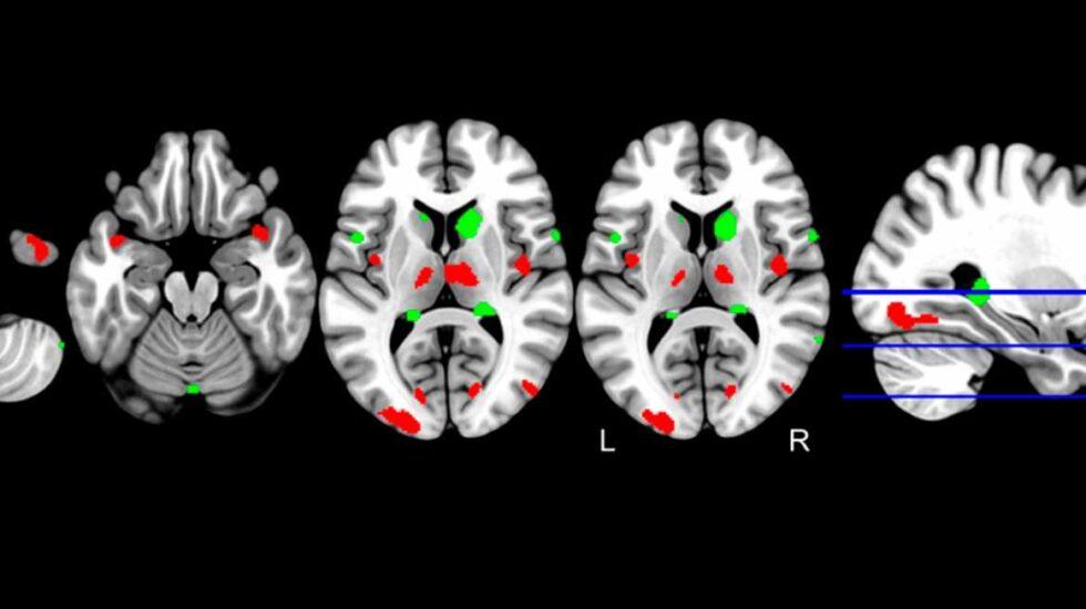 Menor presencia de sustancia gris en el hipocampo, relacionada con alzhéimer