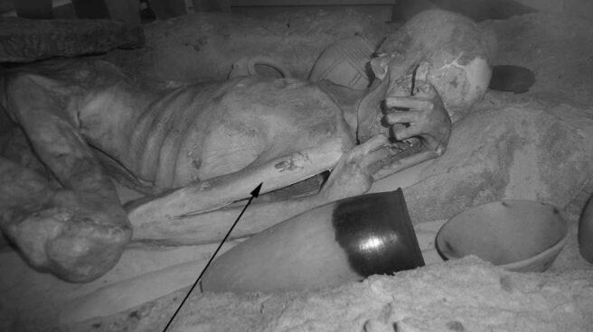 Detalle del tatuaje de una de las momias.