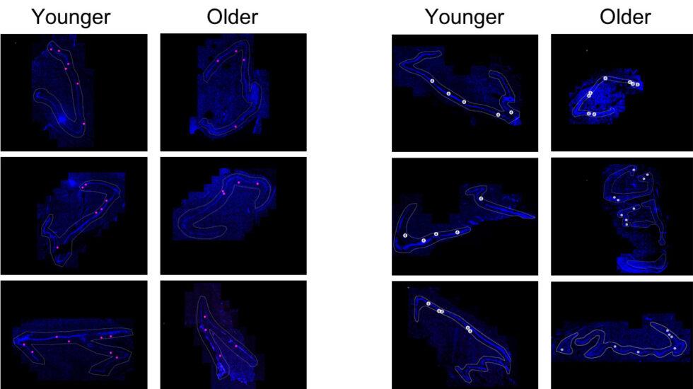 Imágenes de la investigación en cerébros jóvenes y mayores.