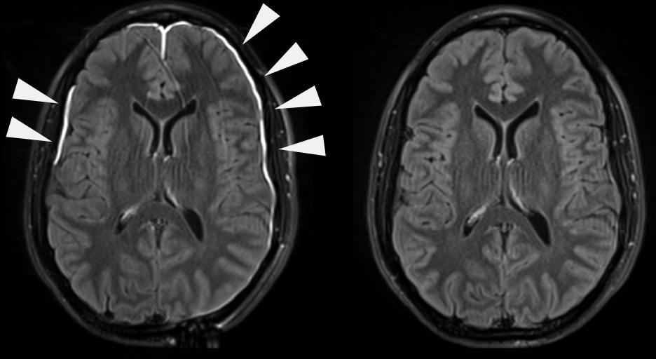 Meninges dañadas tras un golpe y cerebro sanado 35 días después