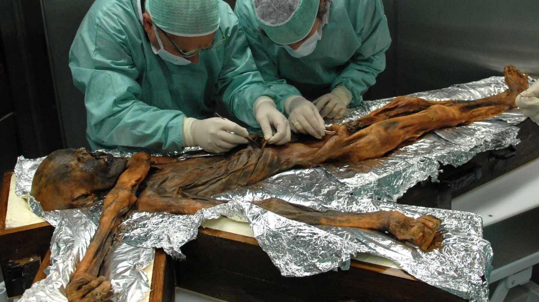 Autopsia estomacal del hombre de los hielos