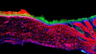 El equipo de Izpisúa consigue regenerar piel reprogramando células en una herida