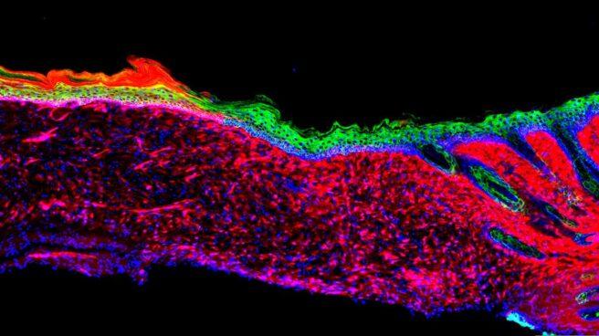 Tejido de piel recuperado gracias a células reprogramadas