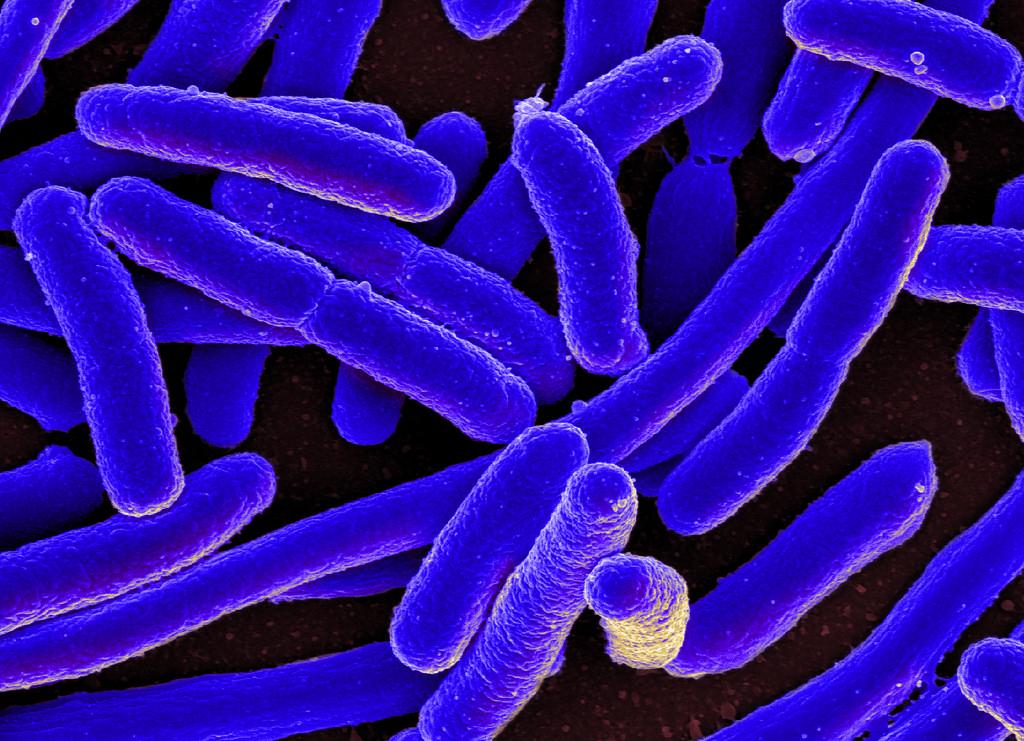 Bacteria e coli.