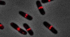 Científicos españoles encuentran la manera de frenar bacterias multirresistentes