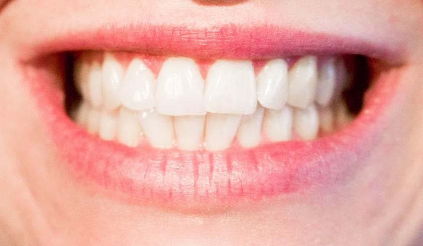 Nuevas nanopartículas permiten remineralizar los dientes