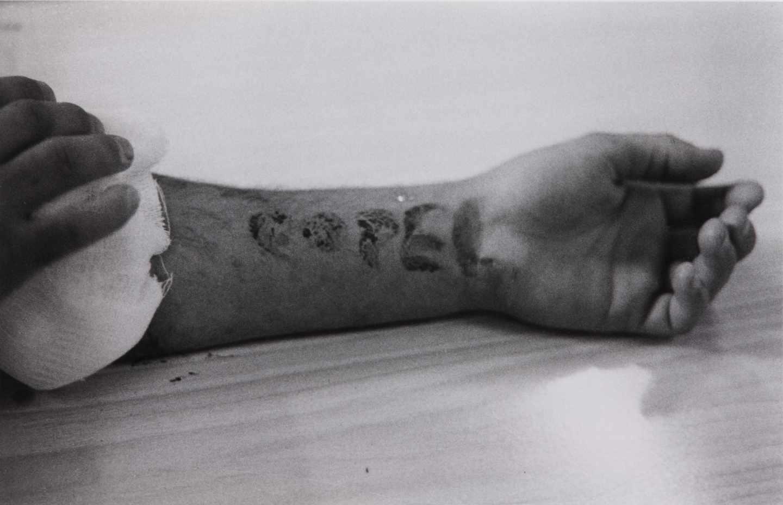'Autolesiones de la COPEL', Colita.