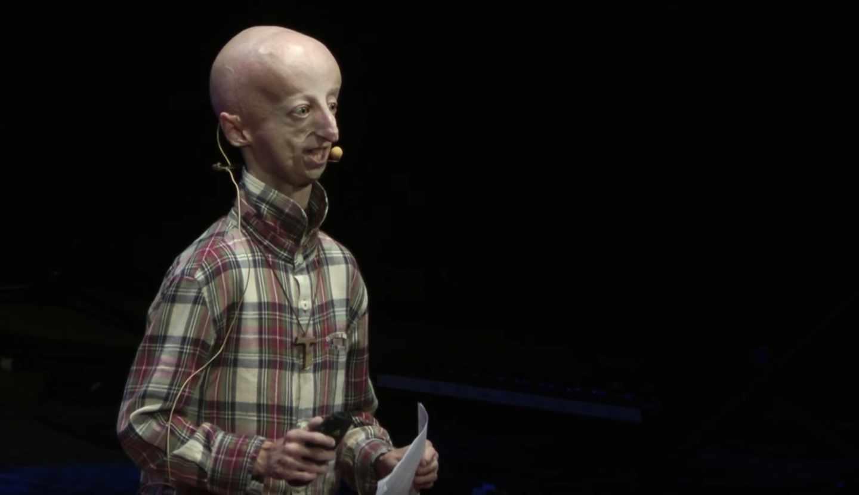 Corta-pega genético contra el síndrome del envejecimiento acelerado