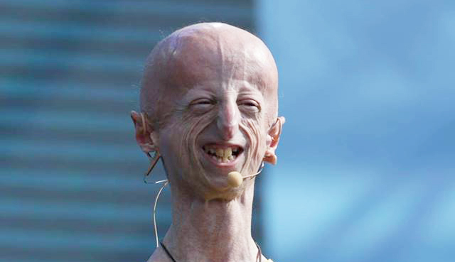 Sammy Baso, activista italiano con el síndrome de progeria Hutchinson-Gilford.