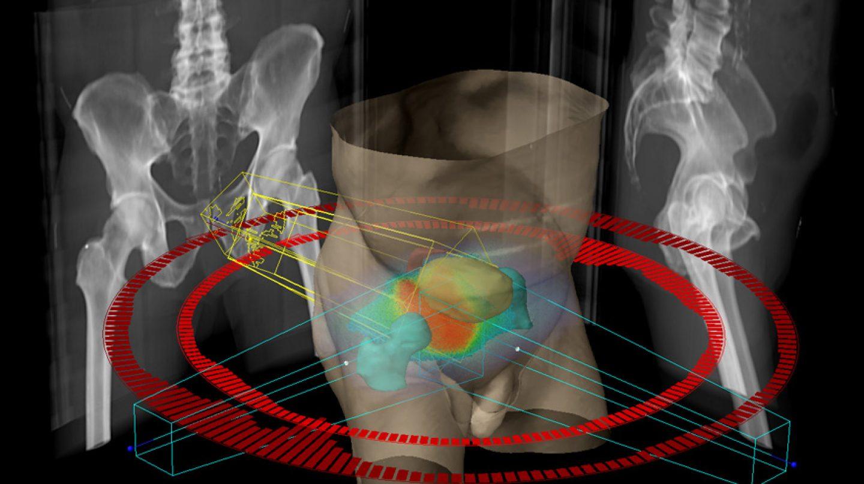 extirpación del cáncer de próstata versus radiación