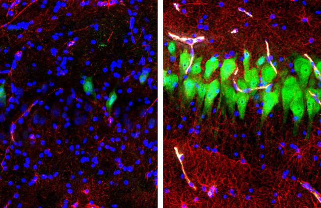 A la izda. células del cerebro muerto. A la dcha., vuelven a mostrar actividad (en verde)
