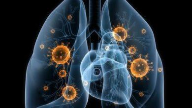 Un nuevo tratamiento de inmunoterapia rebaja un 27% el riesgo de muerte del cáncer de pulmón