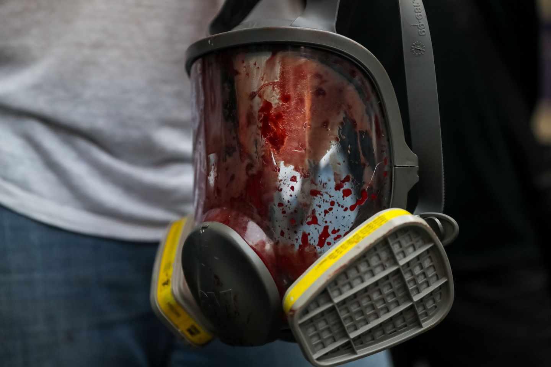 Una máscara antigas, repleta de sangre tras los disparos de la Policía a los manifestantes.