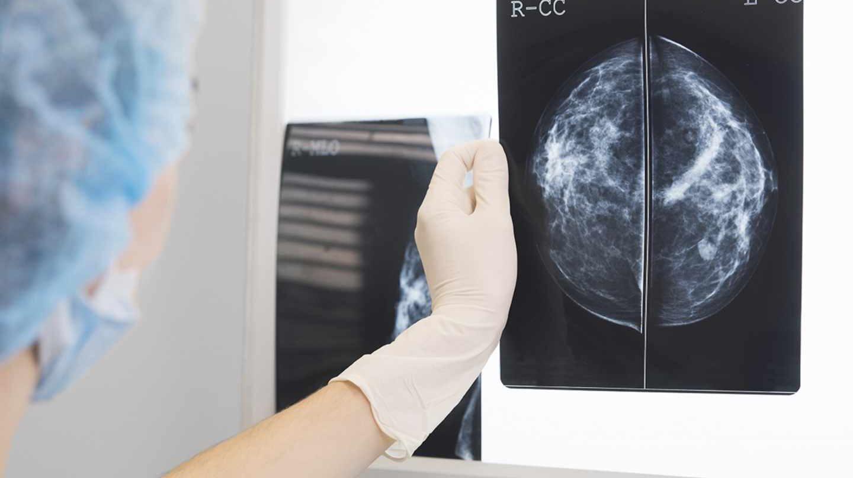 Radiografía de mama
