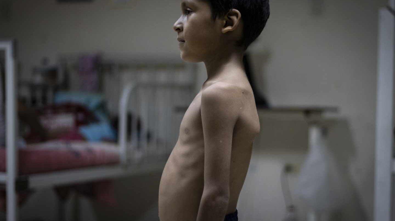 Juan Luis, de cinco años, pesa 14 kg y proviene del Delta Amacuro.