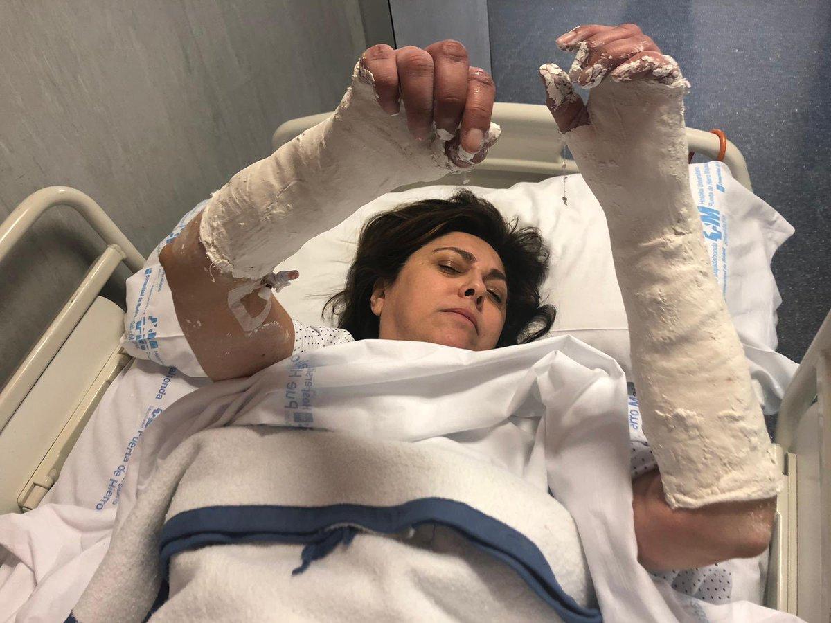 La directiva Rosa García, en el hospital tras romperse las dos muñecas en un accidente.