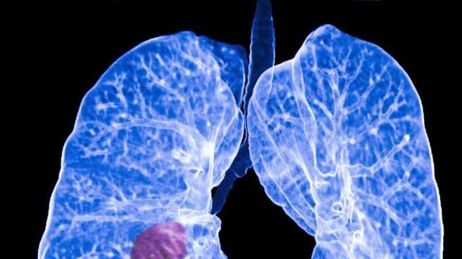 Imagen de archivo de un pulmón