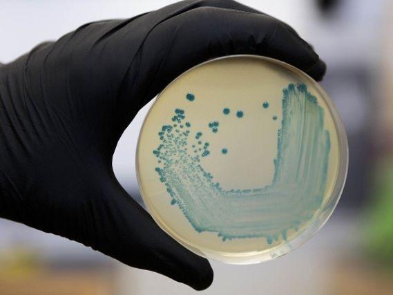 Una placa con la bacteria de listeriosis