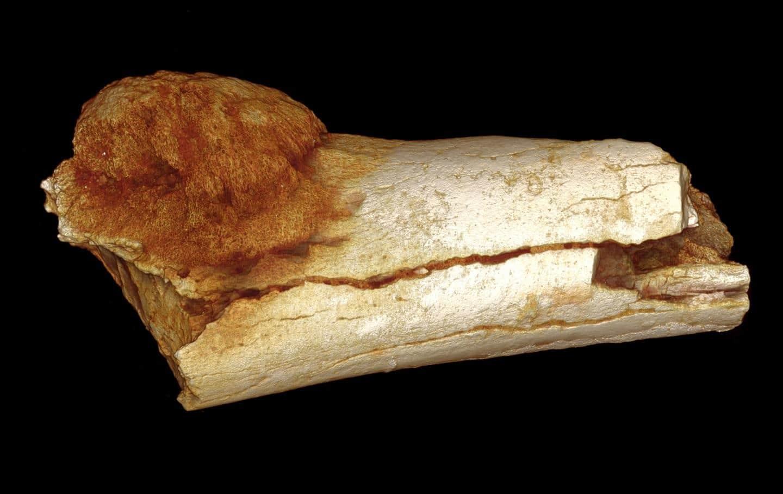 tratamiento cancer en los huesos