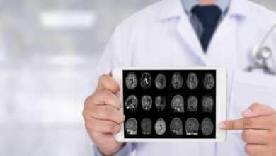Identifican tres categorías de genes implicadas en el alzhéimer