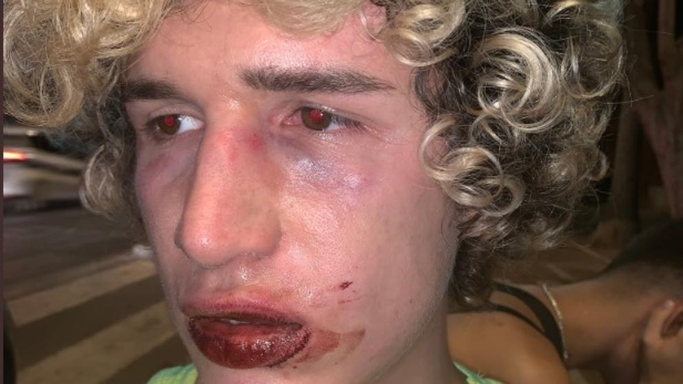 Joven agredido en Valencia