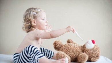 El sarampión deja a los niños no vacunados más vulnerables a otras infecciones