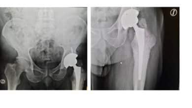 La acusación contra Johnson & Johnson pide informes forenses para los afectados de prótesis de cadera