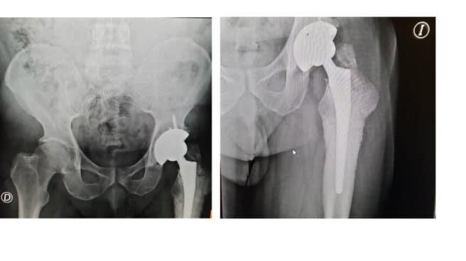 Una de las prótesis defectuosas distribuidas por Johnson & Johnson e implantada a un paciente de Canarias. El Independiente.