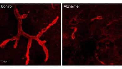 Un anticoagulante logra retrasar la aparición del alzhéimer en ratones