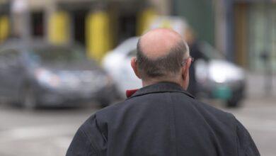 La contaminación del aire provoca pérdida de pelo