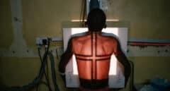 Las muertes por VIH se estancan por falta de pruebas básicas